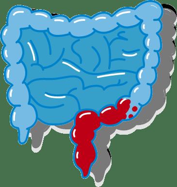Colitis Ulcerosa Variante Enddarm