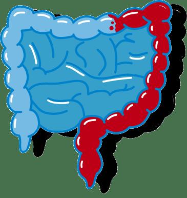 Colitis Ulcerosa Variante Dickdarmhälfte