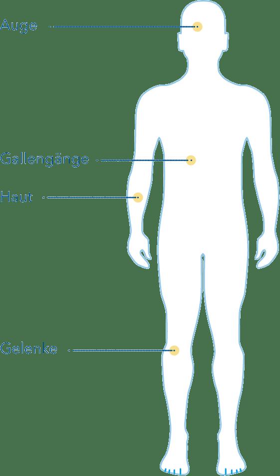Weitere Beschwerden bei Colitis Ulcerosa